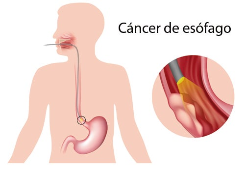 Síntomas de las principales enfermedades del esófago