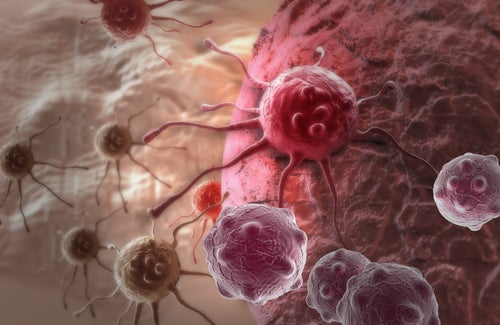 Le chou-fleur contre le cancer.