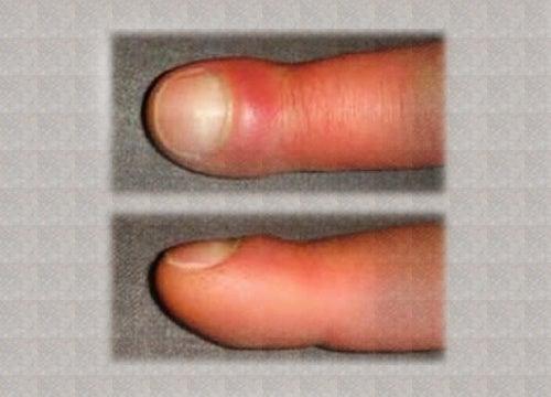 ¿Se te hinchan los dedos de las manos? ¿A qué se debe?