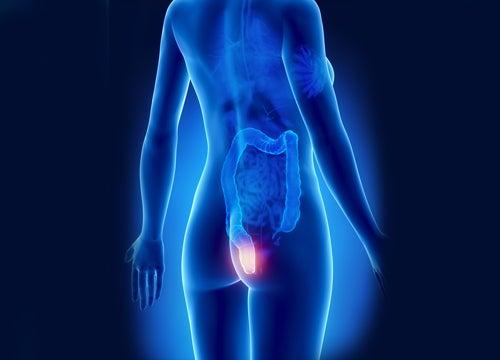 9 remedios naturales contra las hemorroides rectales