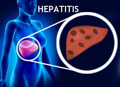 Cómo prevenir la hepatitis B