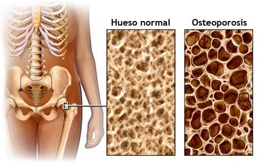 Dieta para prevenir la osteoporosis