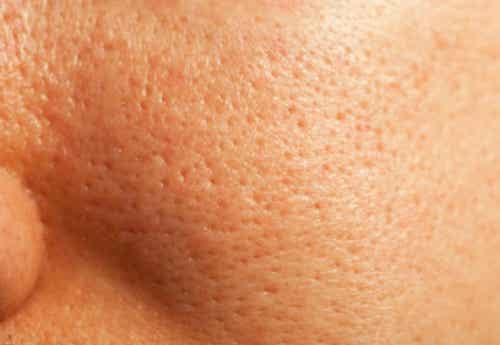 Tratamiento natural para los poros dilatados