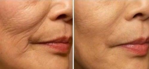 Cómo evitar las arrugas alrededor de la boca