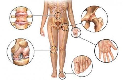 8 hierbas para reducir los dolores de la artritis