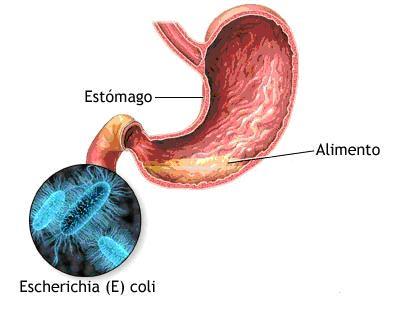 diarrea-por-escherichia-colia