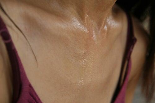El sudor excesivo es sufrido por muchas personas