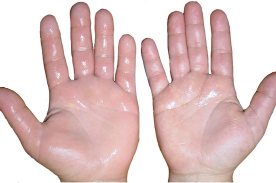 Sudoración en las manos