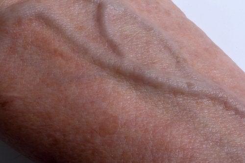El melasma o paño en la piel.