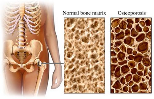 Todo lo que debes saber sobre la osteoporosis