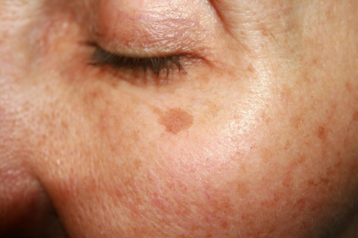 manchas oscuras en las mejillas causas