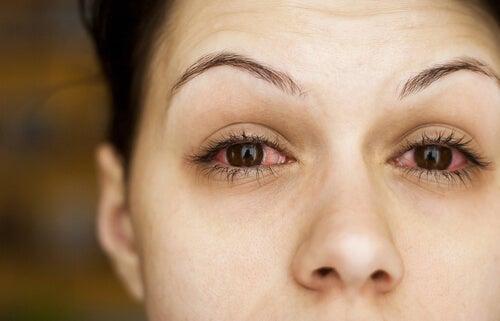 ojo seco en la menopausia
