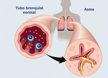 Tratamiento natural y prevención del asma