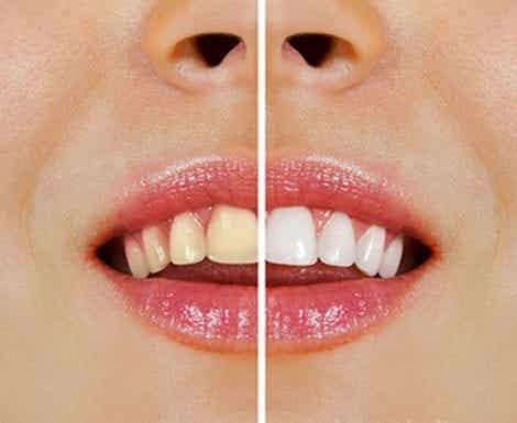 Productos naturales para blanquear los dientes