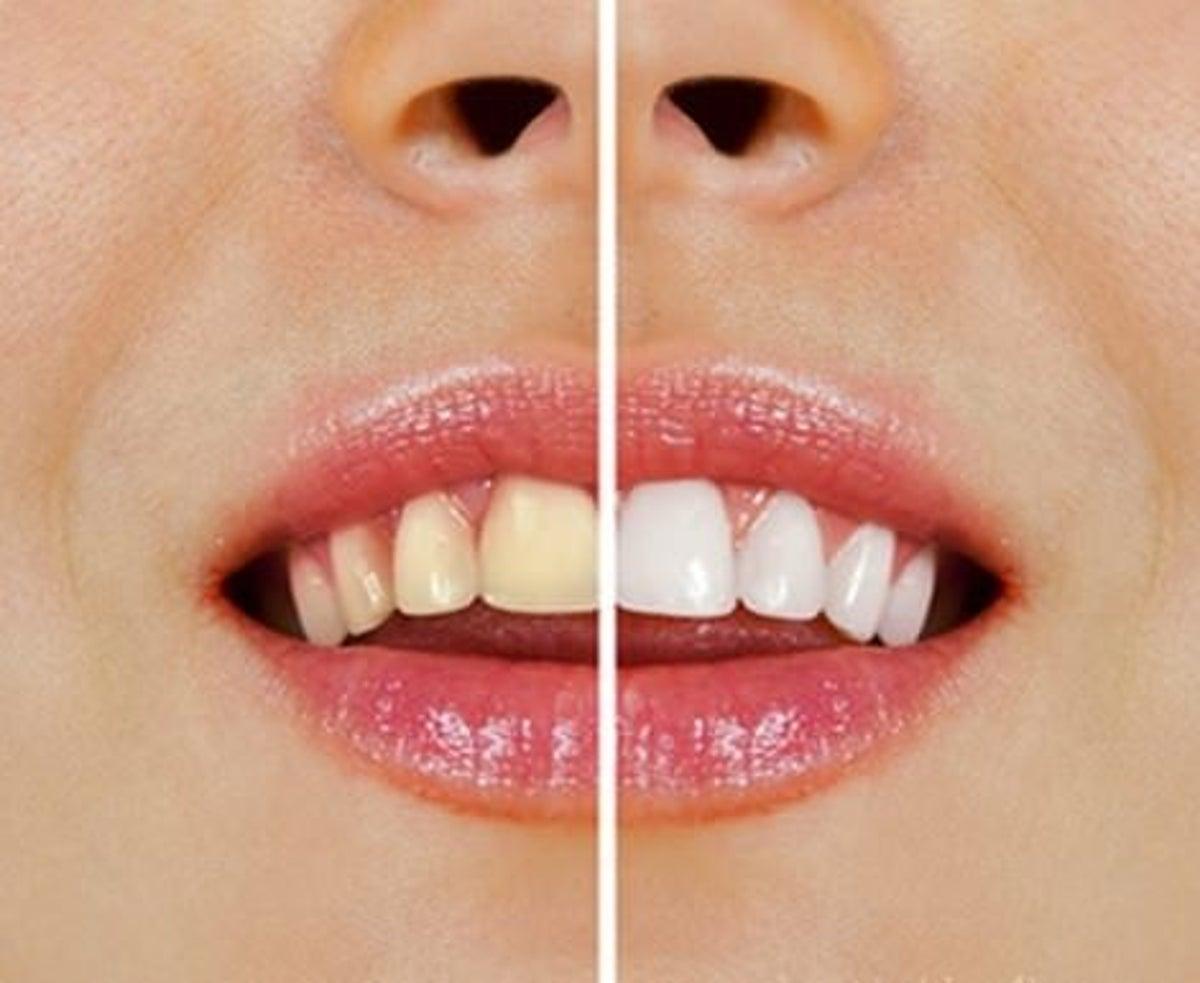 cuál es el mejor metodo para blanquear los dientes
