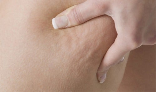Masajes que pueden ayudar a combatir la celulitis