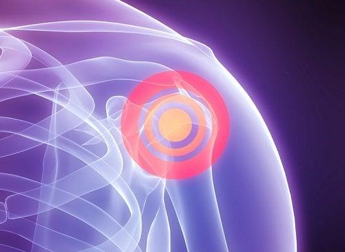 Remedios naturales para el dolor de hombros