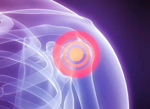 Consejos para evitar el dolor de hombros