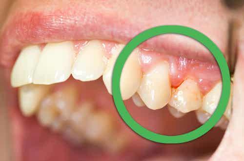 Remedios naturales para encías sangrantes o dentaduras flojas
