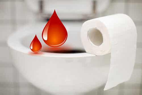 Consejos para prevenir la aparición de las hemorroides