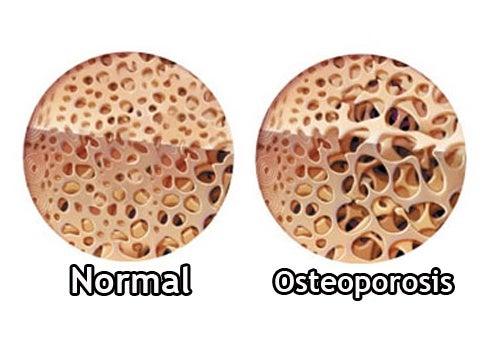 Osteoporosis_