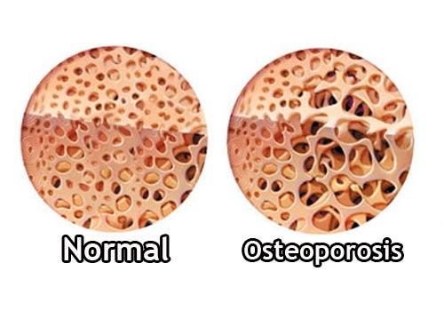 Cómo controlar la osteoporosis durante la menopausia