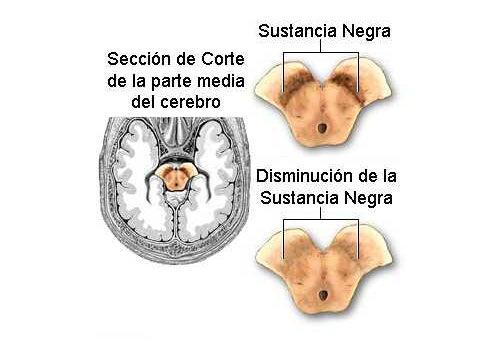 Alimentación en la prevención del Parkinson