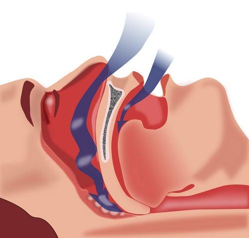 Tratamiento natural para la apnea de sueño