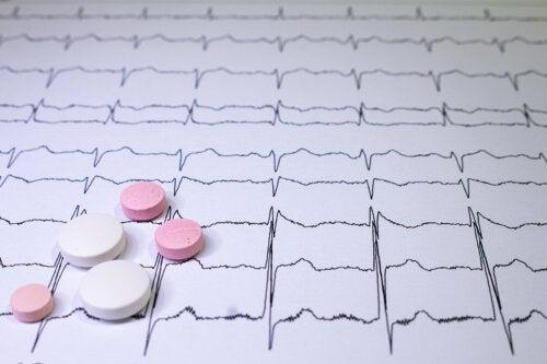 ¿Cómo se deben tratar las taquicardias?