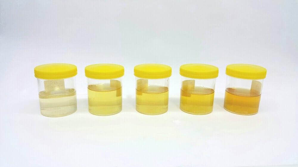 Muestras de orina clara y amarilla.