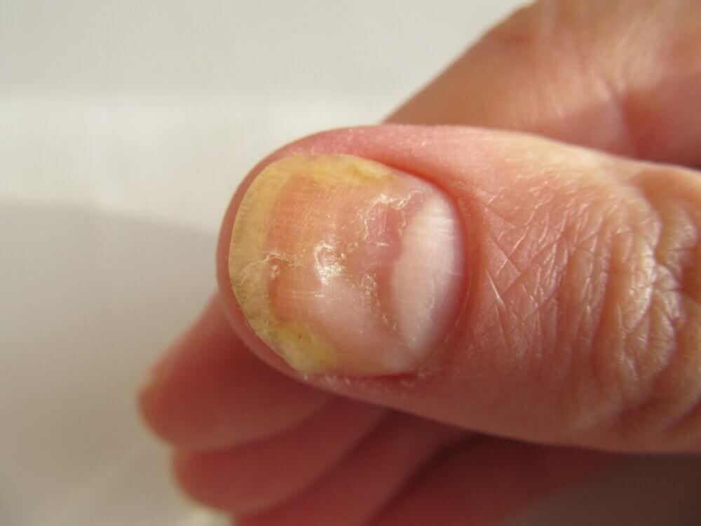 Onicomicosis en las uñas de las manos.