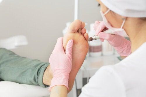 Cómo eliminar las callosidades en los pies