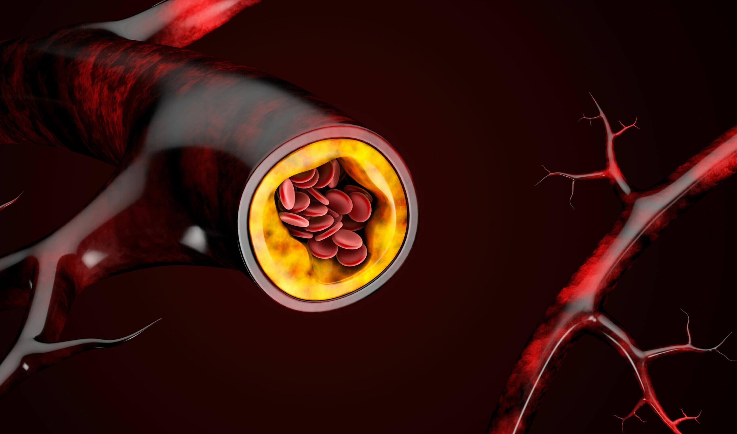 El consumo elevado de triglicéridos puede provocar aterosclerosis.