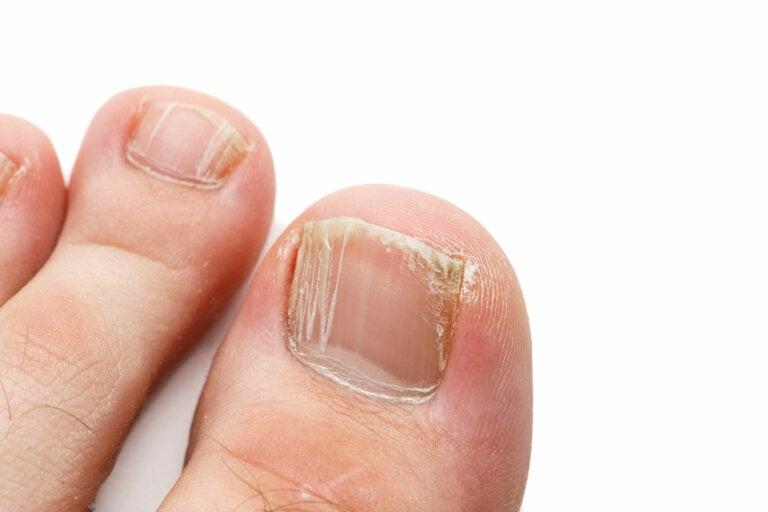 La onicomicosis, una infección frecuente