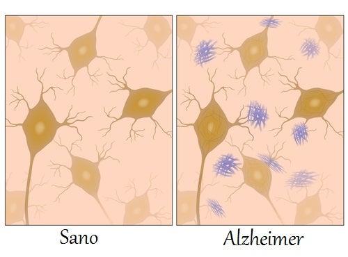 Alimentos para combatir el Alzheimer