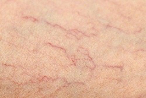 ¿Se pueden evitar las arañitas de las piernas?