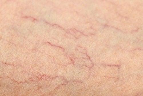 Remedios para las arañas vasculares de las piernas