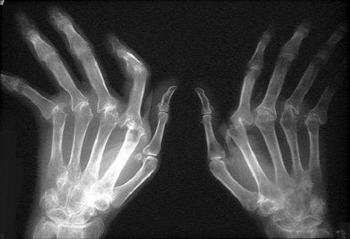 Beber agua combate la artritis