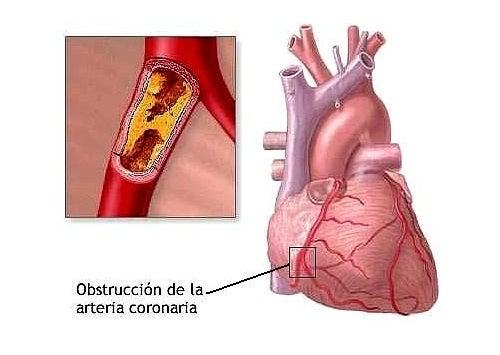 8 hábitos cotidianos que pueden causarnos problemas cardiacos