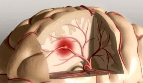 Daños cerebrales por no dormir bien