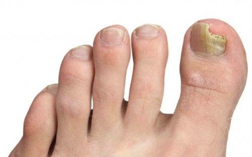 Consejos para prevenir los hongos en los pies