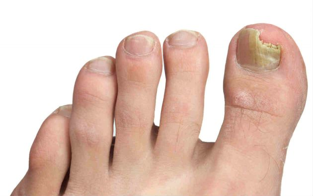 El tratamiento del hongo de las uñas en los pies por el alquitrán