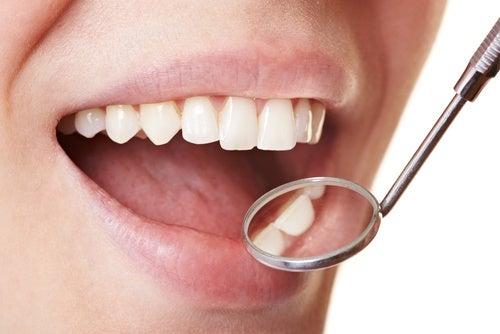 8 alimentos que pueden deteriorar el esmalte dental
