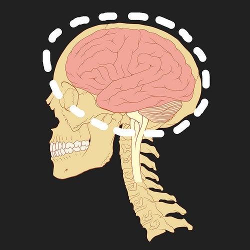 ¿Qué es un hematoma subdural?¿Por qué se produce?