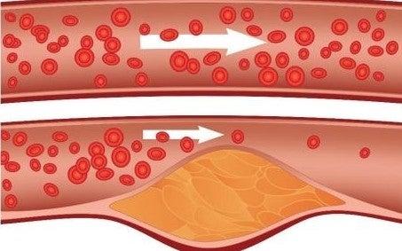 colesterol-productos-herbolario-1