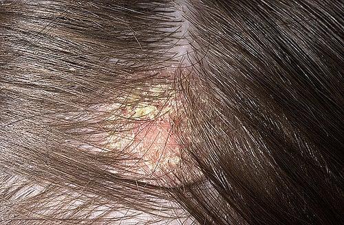 dermatitis seborreica tratamientos