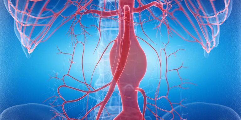 Consejos de salud para prevenir un aneurisma