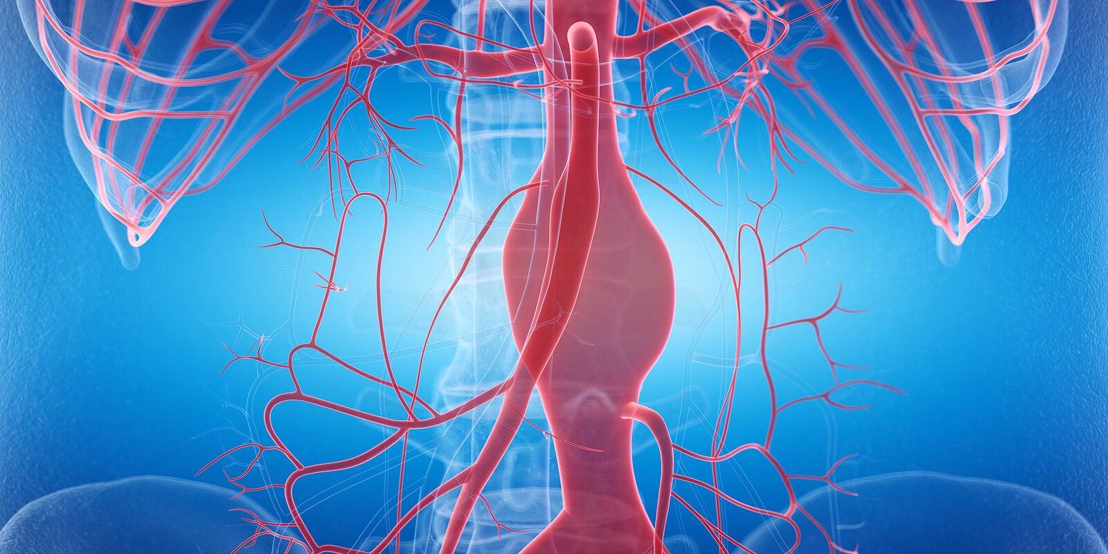 Aneurisma por hipertensión arterial.