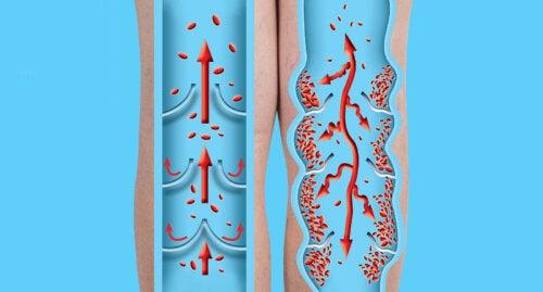 ¿Qué es una trombosis y cómo prevenirla?