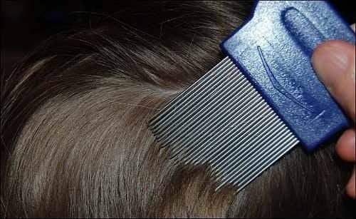 Cómo saber la diferencia entre piojos y cuero cabelludo seco